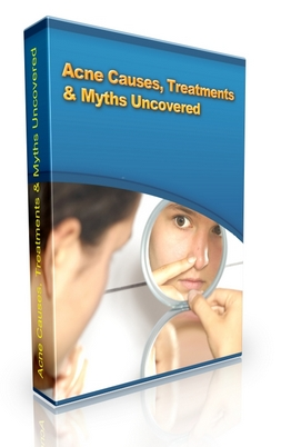Product picture Acne Causes, Treatments & Myths Uncovered