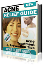 Product picture Acne Relief Guide - Acne Treatment & Prevention Tips